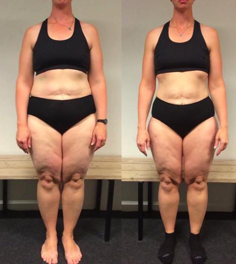 Jette's vægttab på 10 uger m. personlig træning